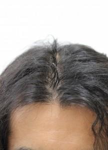 IMG 0389 e1408867790972 216x300 - モニターさんが育毛・効果実感(最終報告)